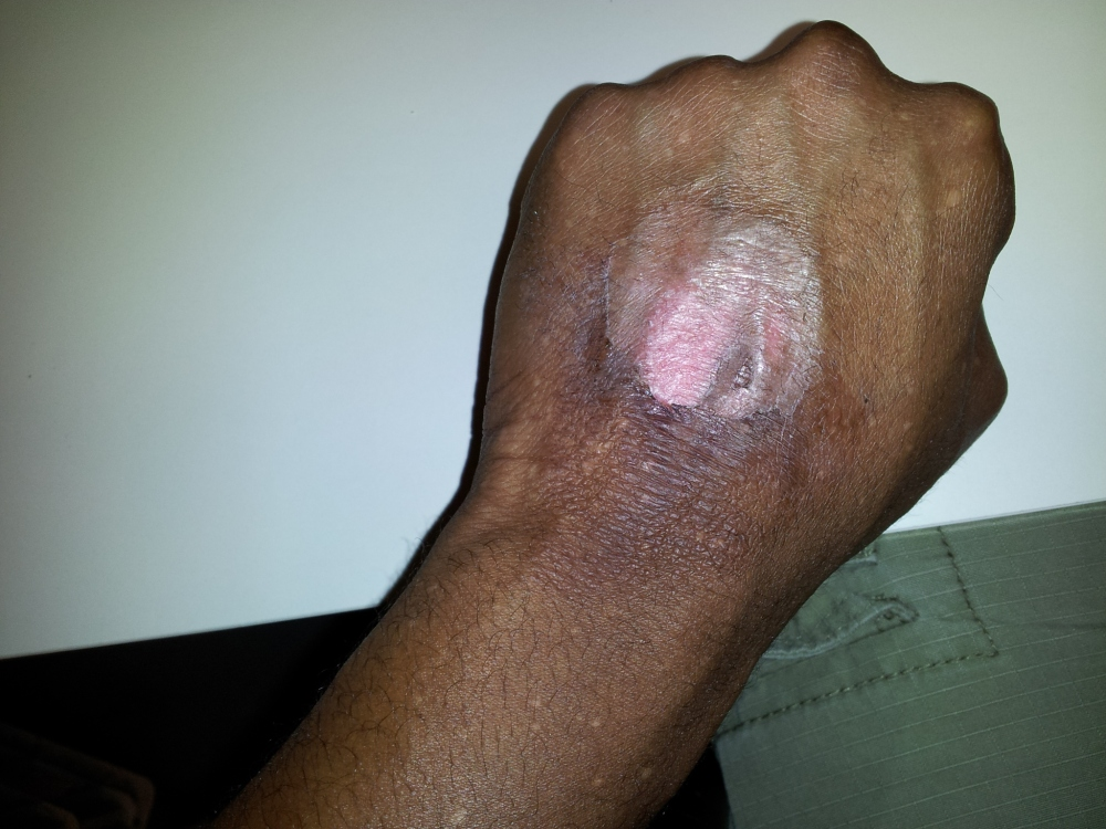 2nd degree burn on my left hand.