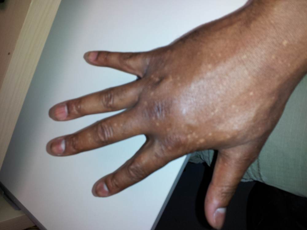 I lost full motion temporarily due to the swelling in my right hand immediately after the accident.